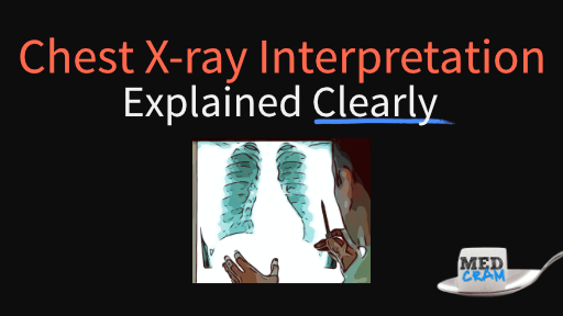 chest x-ray interpretation explained clearly