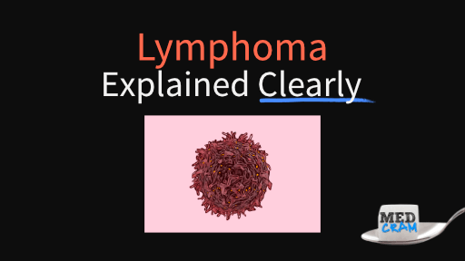 lymphoma explained clearly