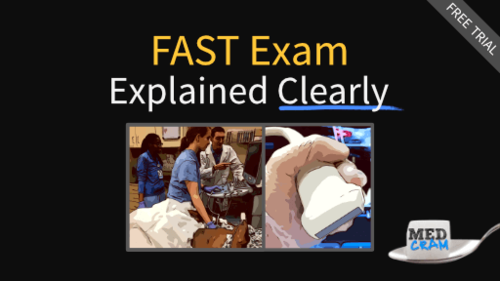 e-fast exam explained clearly